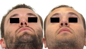 Patient 7d Revision Rhinoplasty Before and After