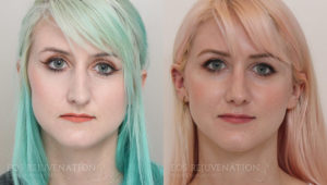 Patient 10c Revision Rhinoplasty Before and After