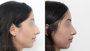 Patient 5a Rhinoplasty Before and After