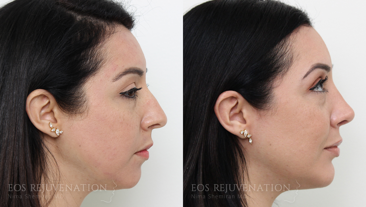 Patient 21a Rhinoplasty Before and After