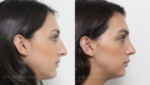 Rhinoplasty_edit_1-3