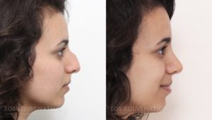 Beverly Hills Woman Patient 6A Showing Before and After Rhinoplasty Results