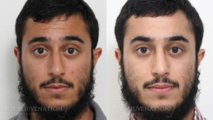 Patient 17c Rhinoplasty Before and After