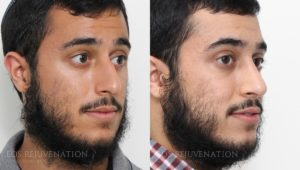 Patient 17b Rhinoplasty Before and After