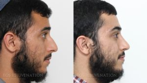 Patient 17a Rhinoplasty Before and After
