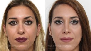 Patient 18c Rhinoplasty Before and After
