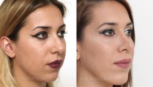 Patient 18b Rhinoplasty Before and After