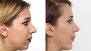 Patient 18a Rhinoplasty Before and After