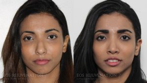 Patient 19c Rhinoplasty Before and After