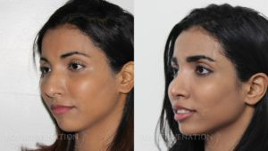 Patient 19b Rhinoplasty Before and After