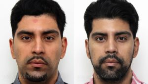 Patient 20c Rhinoplasty Before and After