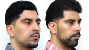 Patient 20b Rhinoplasty Before and After