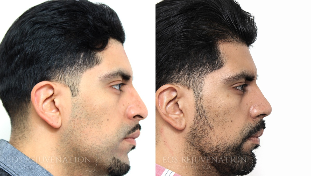 Patient 20a Rhinoplasty Before and After