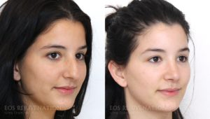 Patient 7b Rhinoplasty Before and After