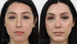 Patient 21c Rhinoplasty Before and After