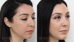 Patient 21b Rhinoplasty Before and After