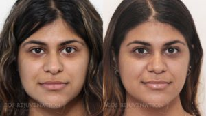 Patient 13c Rhinoplasty Before and After