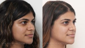 Patient 13b Rhinoplasty Before and After