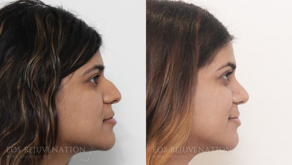 Patient 13a Rhinoplasty Before and After