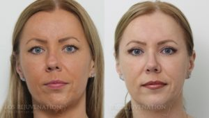 Patient 14c Rhinoplasty Before and After
