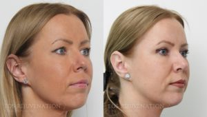 Patient 14b Rhinoplasty Before and After