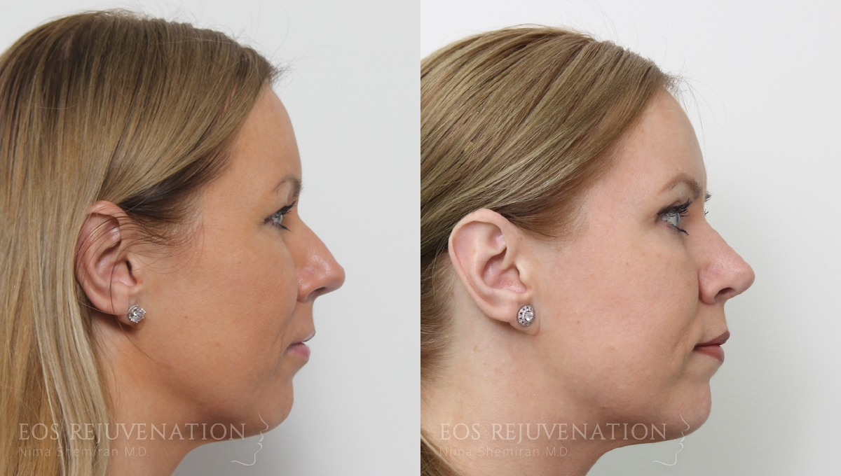 Patient 14a Rhinoplasty Before and After