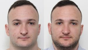 Patient 15c Rhinoplasty Before and After