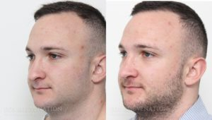 Patient 15b Rhinoplasty Before and After