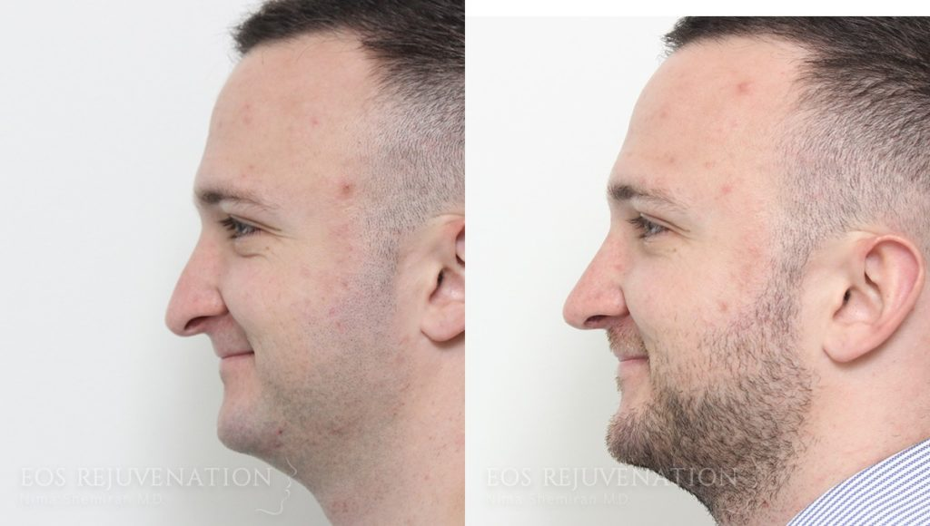 Patient 15a Rhinoplasty Before and After