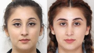 Patient 16c Rhinoplasty Before and After