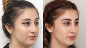 Patient 16b Rhinoplasty Before and After
