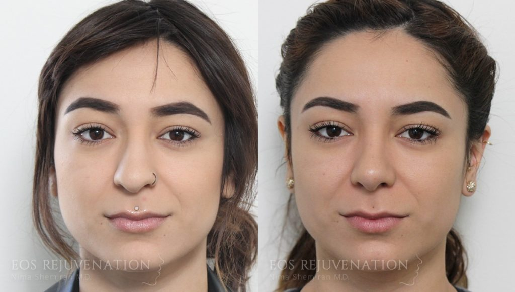 Patient 10c Rhinoplasty Before and After
