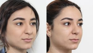 Patient 10b Rhinoplasty Before and After