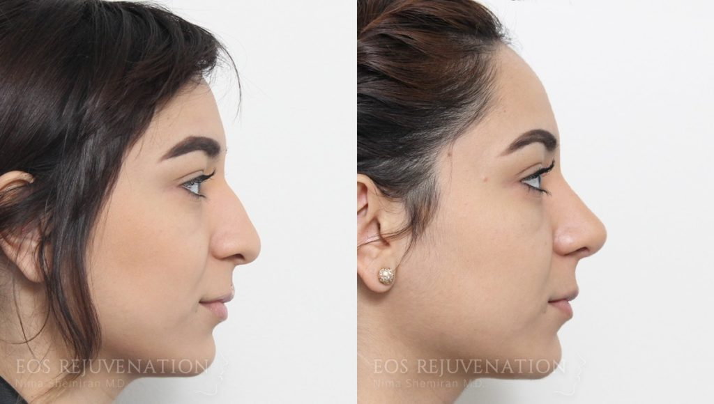 Patient 10a Rhinoplasty Before and After