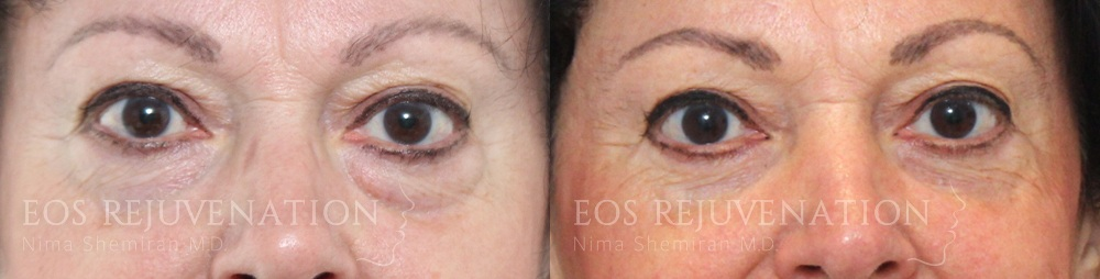 Upper Blepharoplasty Before and After Patient B