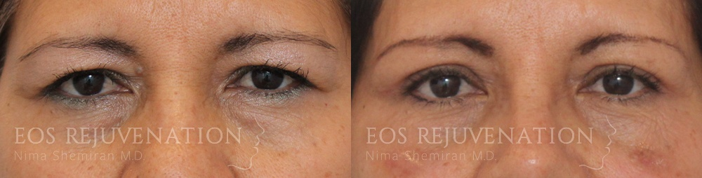 Patient 9a Upper Blepharoplasty Before and After