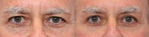 Patient 11a Upper Blepharoplasty Before and After