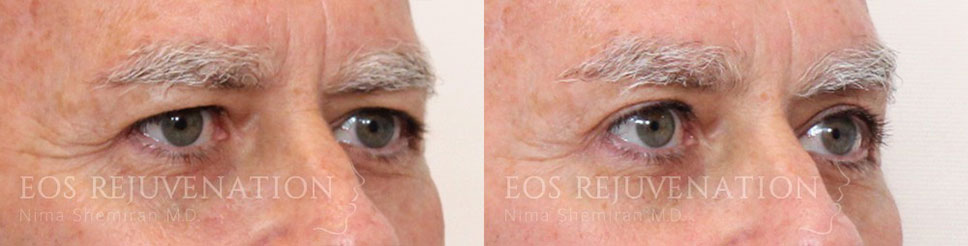 Male Blepharoplasty Before and After Patient A