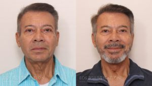 Patient 8a Facelift Before and After
