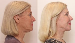 Patient 9c Facelift Before and After
