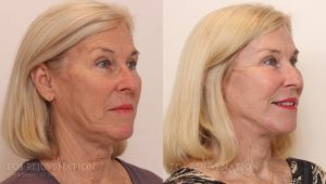 Patient 9b Facelift Before and After