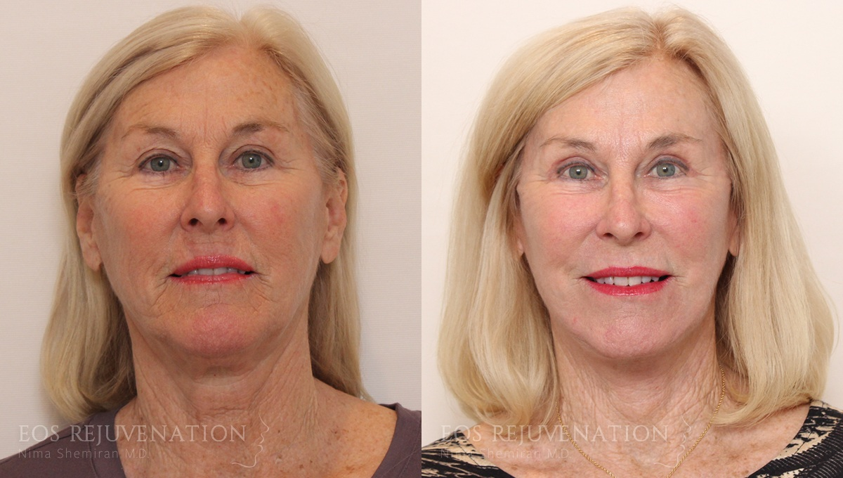 Patient 9a Facelift Before and After