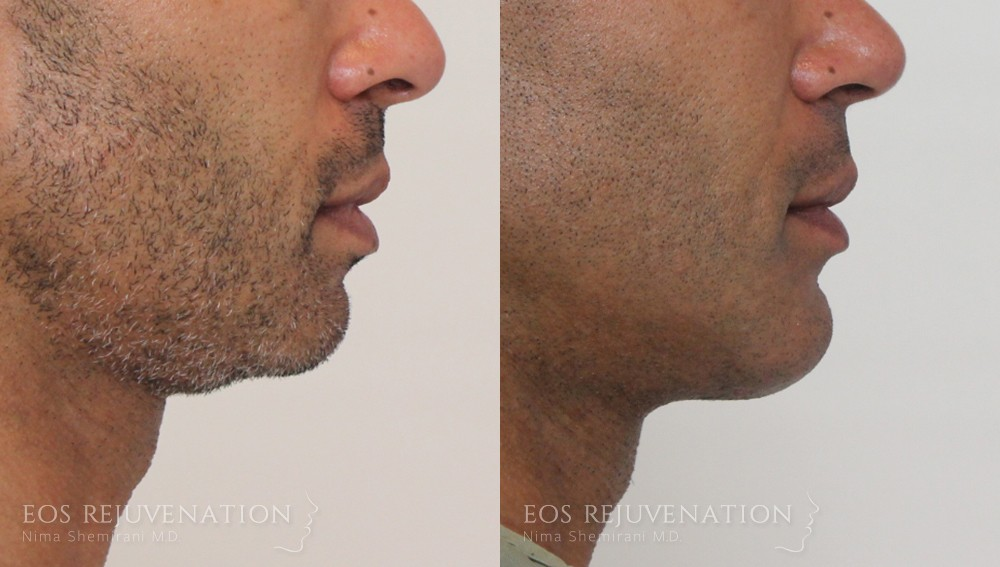 Patient 7a Chin Augmentation Before and After
