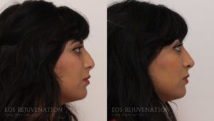 nima_0000_nonsurgicalrhinoplasty_beverlyhills_patient3a_side