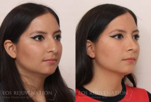 Patient 8b Rhinoplasty Before and After
