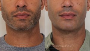 Patient 7c Chin Augmentation Before and After