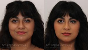 Patient 4d Nonsurgical Rhinoplasty Before and After