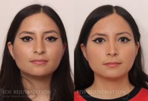 Patient 8c Rhinoplasty Before and After
