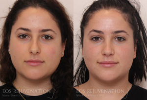 Patient 22d Rhinoplasty Before and After