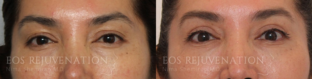 Patient 12a Upper Blepharoplasty Before and After